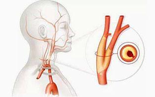 颈动脉斑块危险性,不能简单看软硬