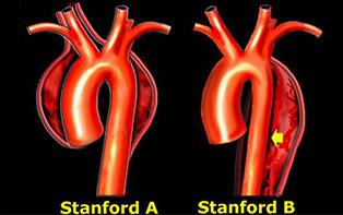 主动脉夹层如何分型